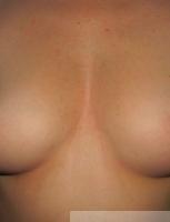 Erotické masáže
